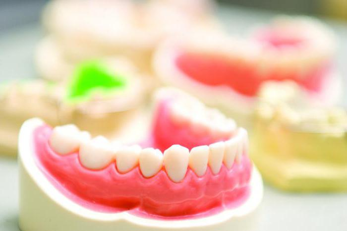 Jenis Gigi Palsu Dan Klasifikasi Gigi Palsu Terbaik